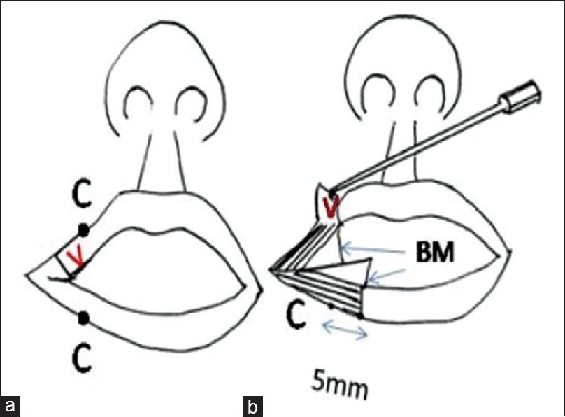 Kaplans Commissuroplasty And Myoplasty Technique In The