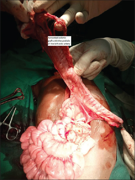 Figure 2: Harvested colonic graft with the pedicle of the left colic artery